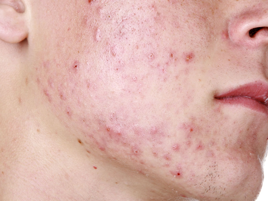 Acne of puistjes zijn huid aandoeningen