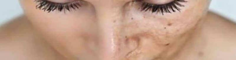 UV-schade-straling-zonnebrand