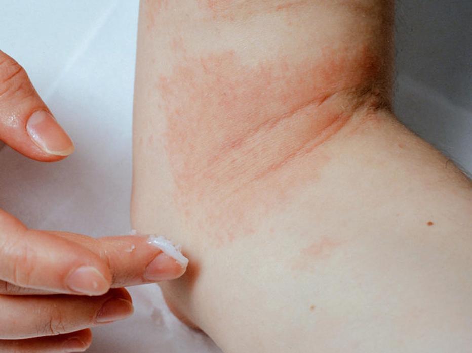 Eczeem is een vervelende huid aandoening